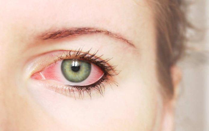 7 Causes of Red Eyes Besides Pink Eye